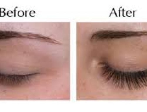 Eyelash Extensions Before After 3