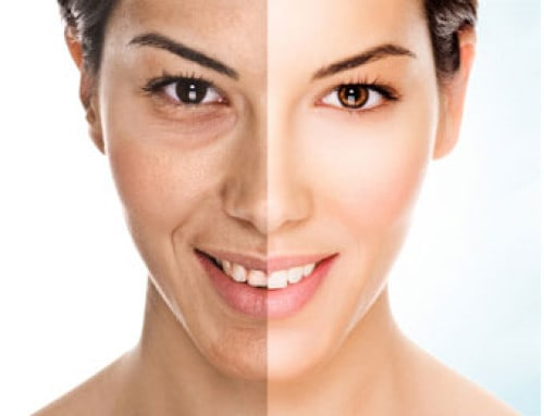 Seeking a facial that will give you multiple benefits at once? Microdermabrasion